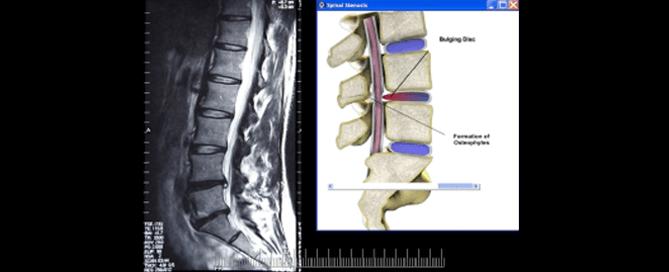 Spinal Stenosis | Texas Pain - San Antonio, Austin, Houston